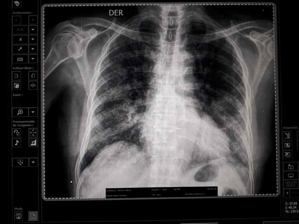 Tomografías